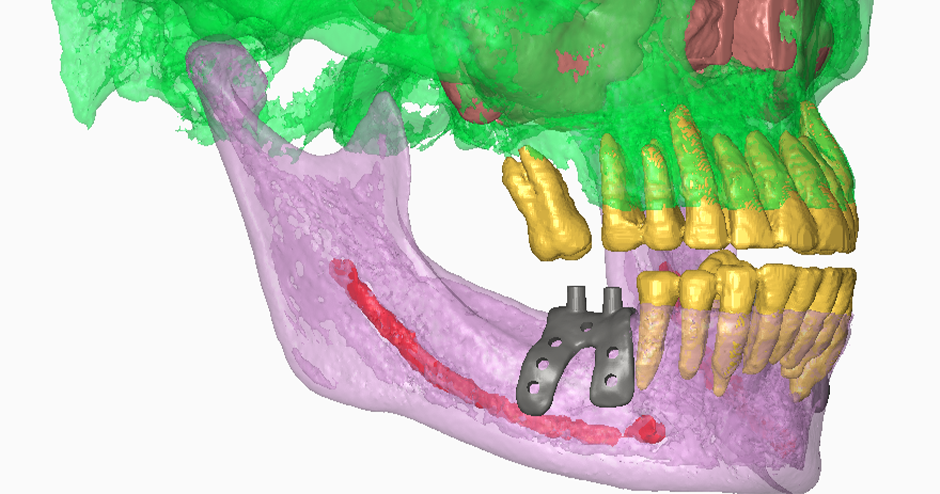 Graft3d Designs And 3d Prints Patient Specific Dental Implants With 3d Technology 3d Systems